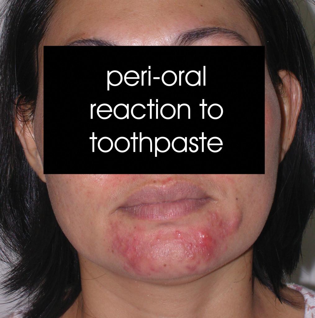 SNC11409-perioraldermatitis-toothpaste-20080125