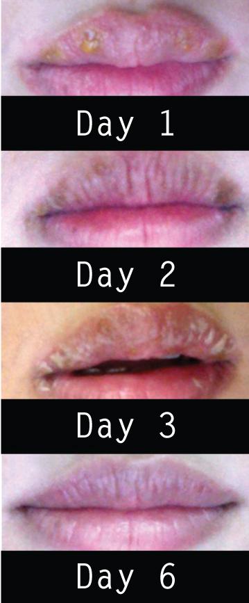 LipHealing-PatientSelfies-SkintelArticle-SepNov2013InSKIN