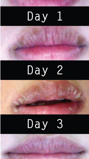 Heal Your Lips!