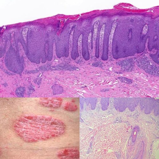 Psoriasis Overview